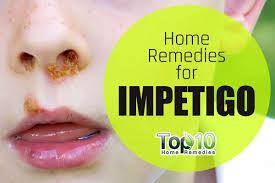 Home Reme s for Impetigo