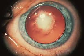 Christmas Tree Cataract Myotonic Dystrophy types of cataracts the cataract course