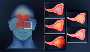 Infrared Lamp Therapy Benefits by Sinusitus U2013 Photizo