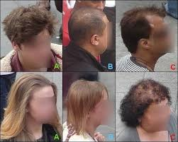 Normal Hair Loss Is It Something More Serious