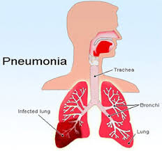 Home Reme s for Pneumonia Natural Treatment
