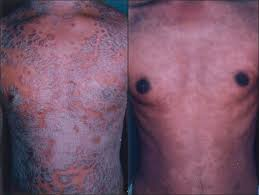 phototherapy for psoriasis using ultraviolet