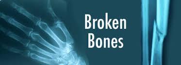 Broken Bones KidsHealth For Parents Akron Children s Hospital