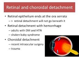 49 Retinal And Choroidal Detachment