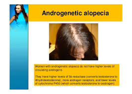 excessive hair shedding causes androgenetic alopecia in scary because this type of hair