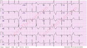 Ventricular Trigeminy ECG Example 3