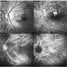 Indocyanine Green Angiography In Angioid Streaks