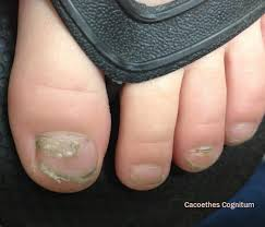 Toenail Separated From Nail Bed by Cacoethes Cognitum Loss Of Nails Following Hand Foot And Mouth