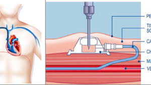 pose d une chambre implantable glossaire médical chambre implantable port à cath hôpital erasme