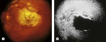 Photograph A And Fluorescein Angiogram B Show Acute Macular Necrosis With Virtually Complete Cessation Of Blood Flow Where Presumably The Medication