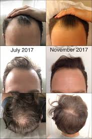 Minoxidil Shedding Phase Pictures by Four Month Update Big Risk Big Reward Using Topical Finasteride