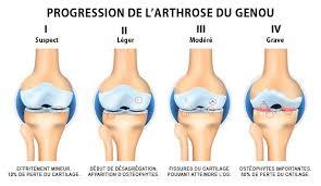 voici comment soigner vos douleurs d arthrose naturellement