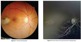 FA Showed Hyperfluorescent Window Defect For The Angioid StreakThe Fundus Of Left Eye Was Within Normal Limits Other Retinal Imaging Facilities Were