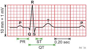 rr interval normal range cv physiology electrocardiogram ekg