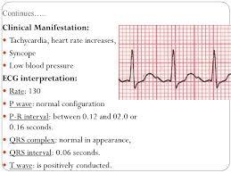 rr interval normal range cardiac arrhythmia ppt