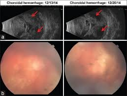 Timing Of Surgery A 75 Year Old Woman With Severe Sjogren Disease And
