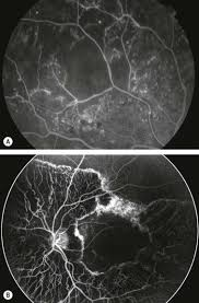 Capillary Drop Out In Diabetic Retinopathy And Choroideremia