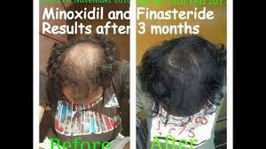 Minoxidil Shedding Phase Pictures minoxidil and finasteride results after 3 months usage youtube