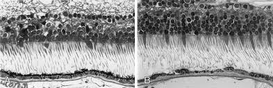 Evaluation Of Retinal Photoreceptors And Pigment Epithelium In A Female Carrier Choroideremia