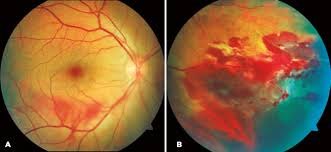 Figure 2 A Dispersed Preretinal Hemorrhages In The Lower Vascular Arch B Peripheral Contusive Edema And Subretinal Nasal