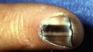 subungual melanoma symptoms causes and treatments