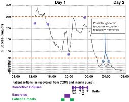 dead in bed syndrome adapted from tanenberg et al 17 glucose