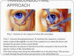 Orbital Floor Fracture Treatment by Orbital Fractures