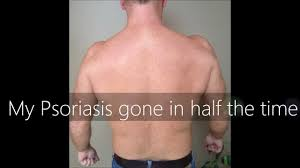 uvb narrowband l home phototherapy treatment for psoriasis and