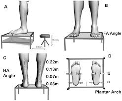 100 Arch D Photogrammetric Analysis A Of The Forefoot Angle B The Rear