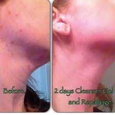 It Works Cleanser Repairage Results Softens The Appearance Of Fine Lines