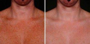 the horrible truths of indoor tanning cosmetic laser dermatology