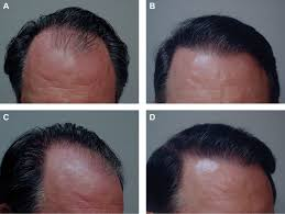 Minoxidil Shedding Phase Pictures by Hair Restoration Surgery The State Of The Art Aesthetic Surgery