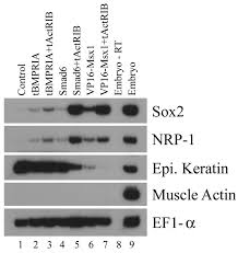 neural induction requires continued suppression of both smad1 and