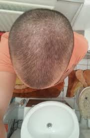 Minoxidil Shedding Phase Pictures by Hair Loss Help Forums Hair Growth Promoting Solution Containing