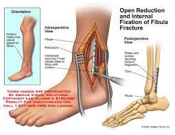 Distal Fibula Ankle Fracture