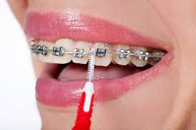 8 Easy Ways to Care for Your Teeth and Braces Brooklyn NY