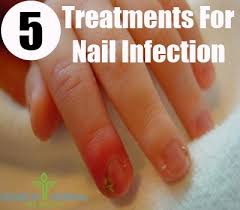 5 nail infection natural treatments and cures search herbal