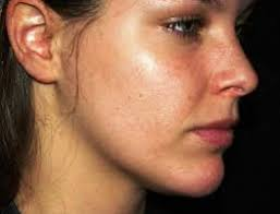 Heat Rash From Tanning Bed by Sun Poisoning Rash U2013 Treatment Pictures What To Do U0026 How To