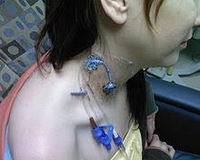 chambre implantable pour perfusion voie veineuse centrale wikipédia