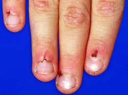 Cyanotic Nail Beds by Hand Examination Oxford Medical Education