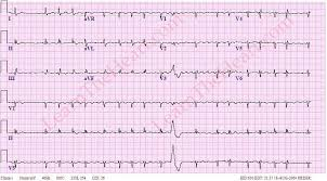 Low Voltage ECG Example 3