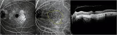 Fluorescein Angiography Left Indocyanine Green Middle And Optical Coherence Tomography Right Of The Same Patient From Figure 1 After
