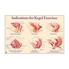 Pelvic Floor Tension Myalgia by Indications For Kegel Exercises Chart Healthy Pinterest