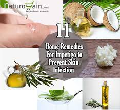 11 Best Home Reme s for Impetigo to Prevent Skin Infection