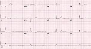 Atrial Fibrillation with Bradycardia ECG Example 2