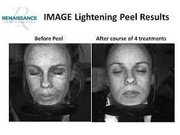 Pumpkin Enzyme Peel Before And After by Image Skincare Peels Renaissance Skincare