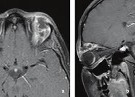 Contrast Enhanced Axial A And Sagittal T1 Weighted MRI Image Showing The Choroidal Retinal Mass Peripherally Enhancing Lobulated Lesion In
