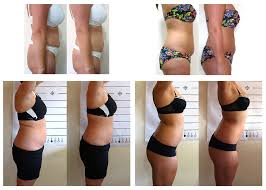 LipoLight Before and After s
