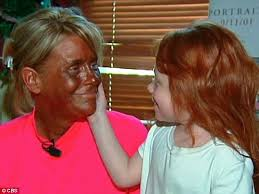 tan mom may district after daughter is sunburned daily