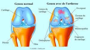 genou gonflé et enflammé chaude derrière ou sans douleur